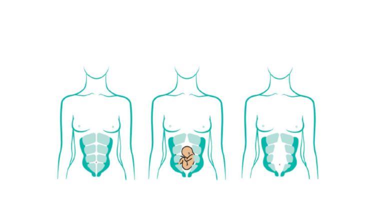diastasis tras el embarazo